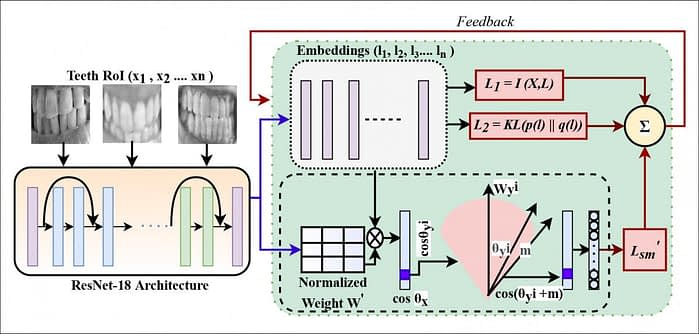 The loss function architecture of DeepTeeth.
