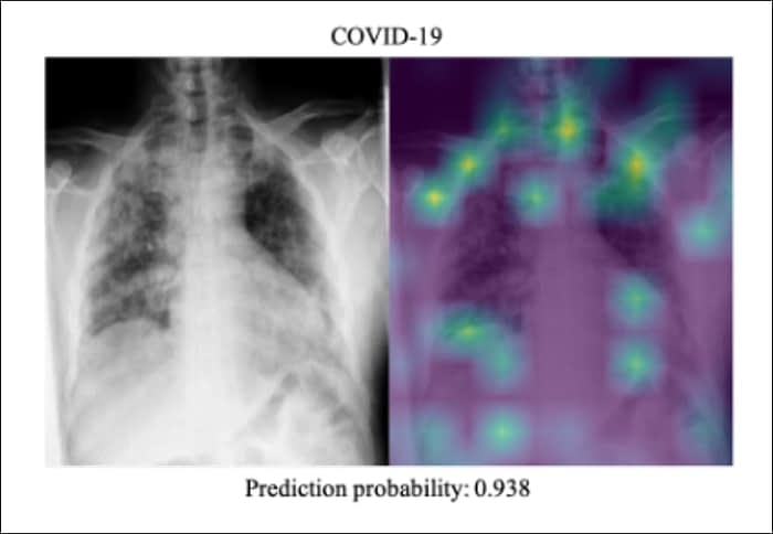 This is an X-ray of a confirmed COVID-19 case, assigned a mere 0.938 prediction probability from COVIDx trained on DarkCovidNet. Source: https://arxiv.org/ftp/arxiv/papers/2109/2109.08020.pdf