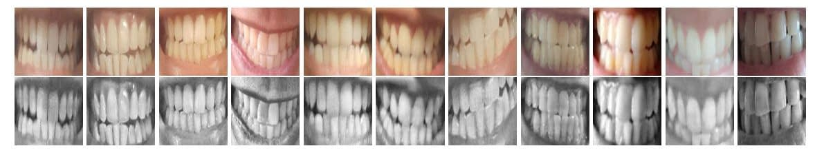 Normalized Region of Interest (RoI) images, and their corresponding enhancements in the automated DeepTeeth work-flow.