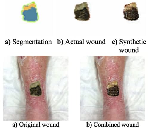 Above left, segmentation applied to the wound area. Above center, image of the actual wound; above right, a synthetic wound of a type that can be generalized in a dataset, based on the original source. Below, the original wound, and, right, a synthesis of the wound generated by WG2GAN.